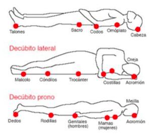 zonas ulceras ortoeco
