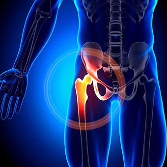 Recuperación fractura de cadera